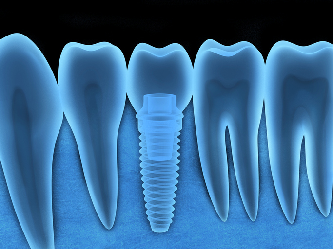 Dental Implants in Redmond, Oregon with Clark Family Dentistry